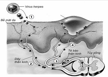 Hiện tượng mụn rộp sinh dục- Herpes sinh dục