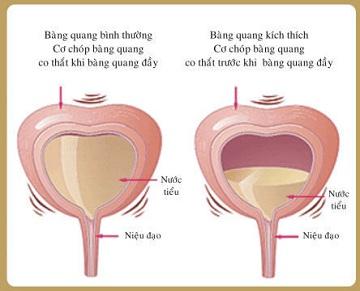 Triệu chứng viêm bàng quang biểu hiện như thế nào? Cách chữa